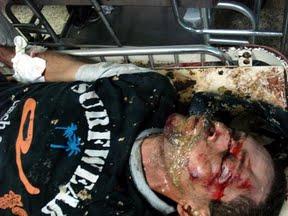 Honduras víctima represión